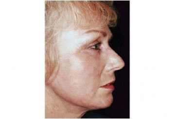 Fotoringiovanimento del viso (Laser Resurfacing), caso 2, post-intervento